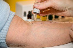 Jak wykonuje się testy alergiczne?