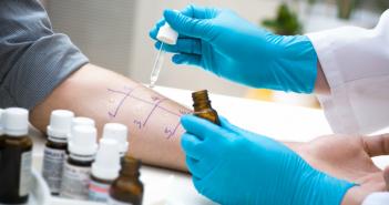 alergia, uczulenie, testy skórne, reakcja alergiczna, alergeny